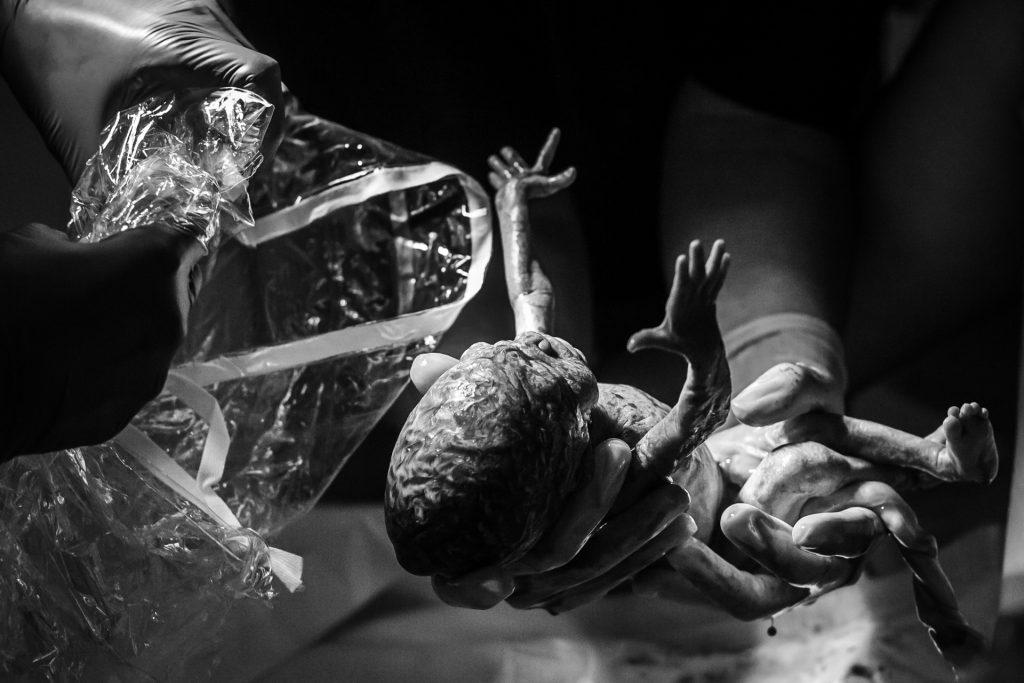 prematuur-geboren-geboorte-nicu-pure-life-geboortefotografie-geboortereportage