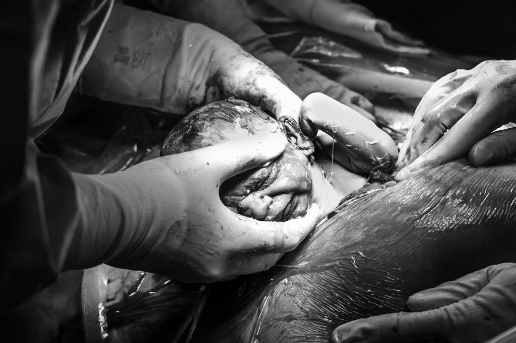 geboorte-tweeling-pure-life-geboortefotografie-geboortefotograaf-bij-keizersnede