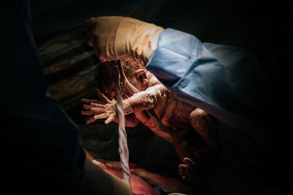 keizersnede-geboortefotograaf-pure-life-geboortefotografie