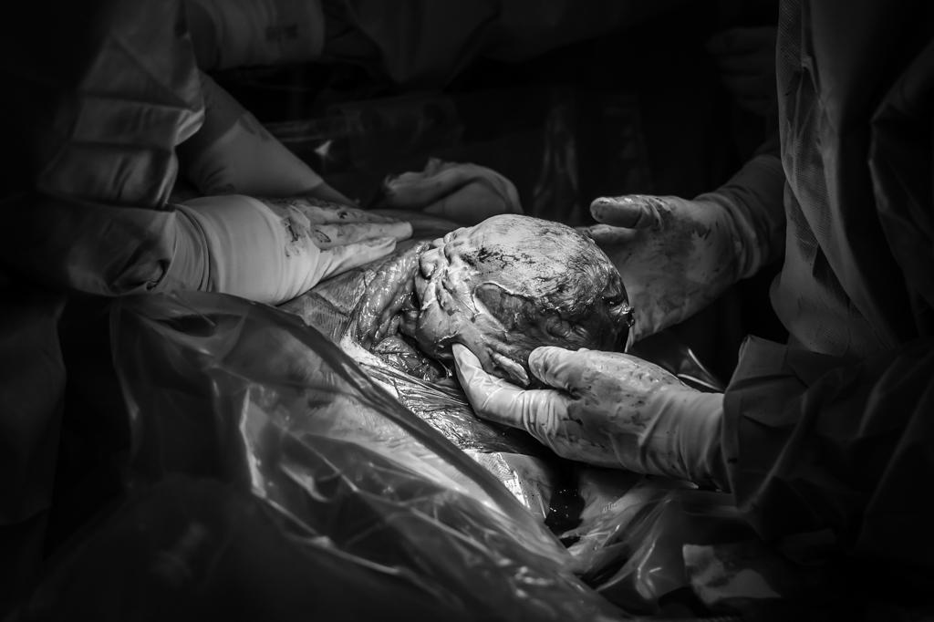 sectio-keizersnede-geboortefotograaf-pure-life-geboortefotografie