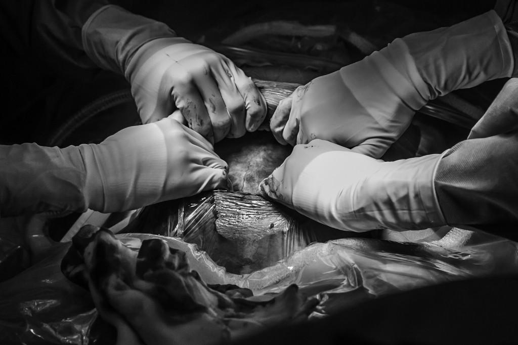 keizersnede-fotograaf-bij-keizersnede-pure-life-geboortefotografie