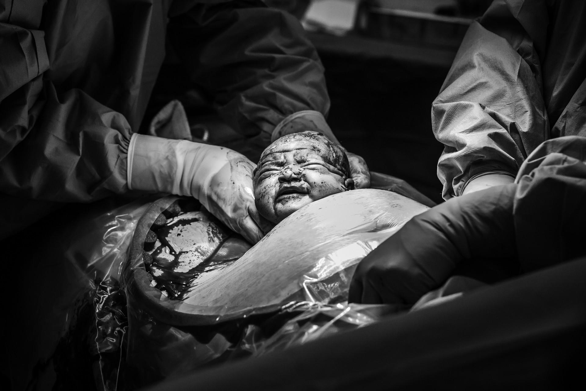 geboortefotograaf-bij-keizersnede-sectio-geboortefotograaf-pure-life-geboortefotografie