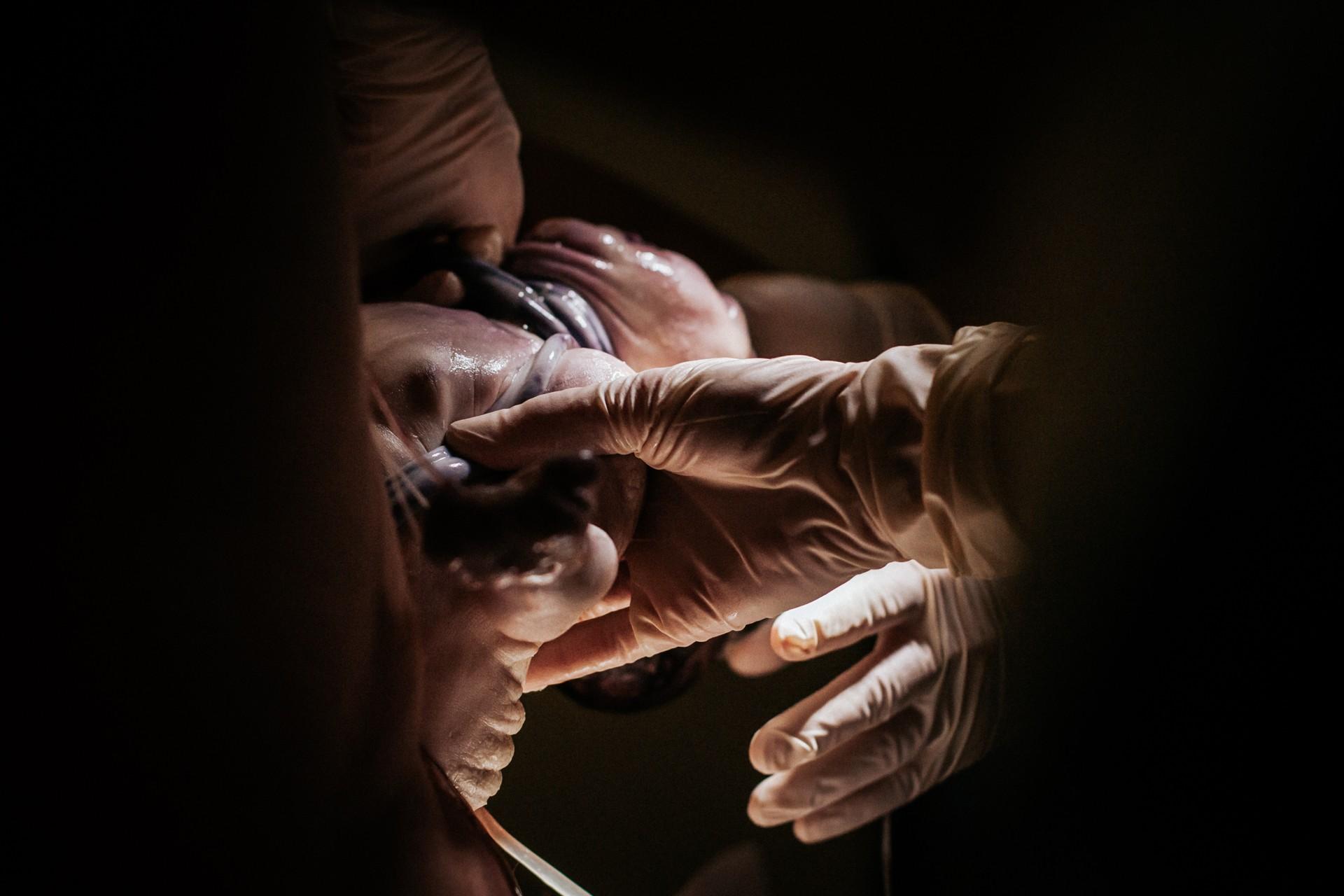 Navelstreng om de nek bij geboorte - verloskundige aan het woord - Pure Life Geboortefotografie