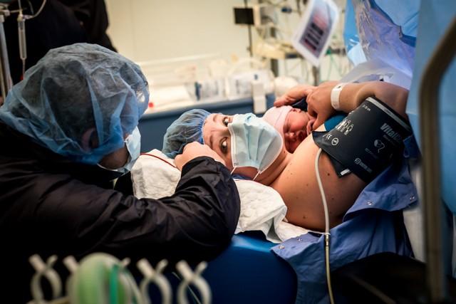 keizersnede-geboorte-genoortefotograaf-Pure-Life-Geboortefotografie-Mother-Assisted-Birth