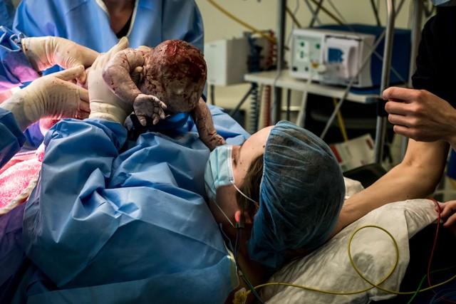 Keizersnede - geboortefotografie - mother assisted c-section
